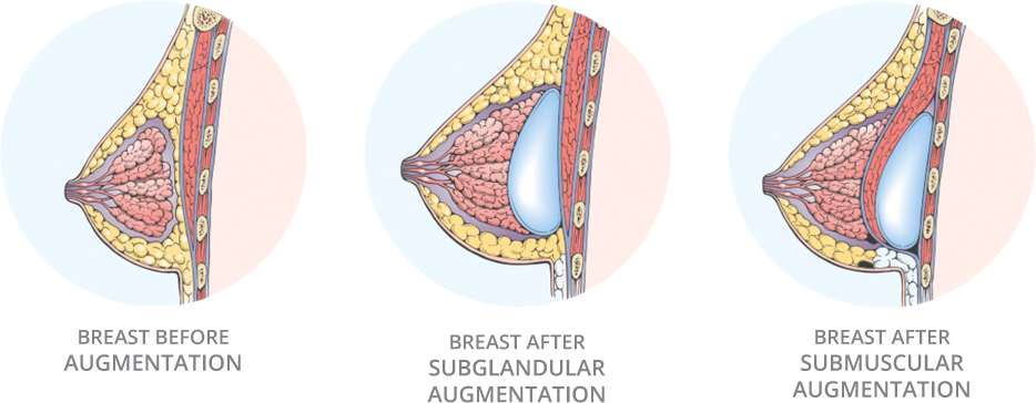 breast implants toronto
