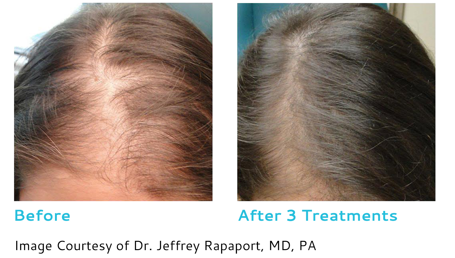 prp hair restoration toronto - before and after