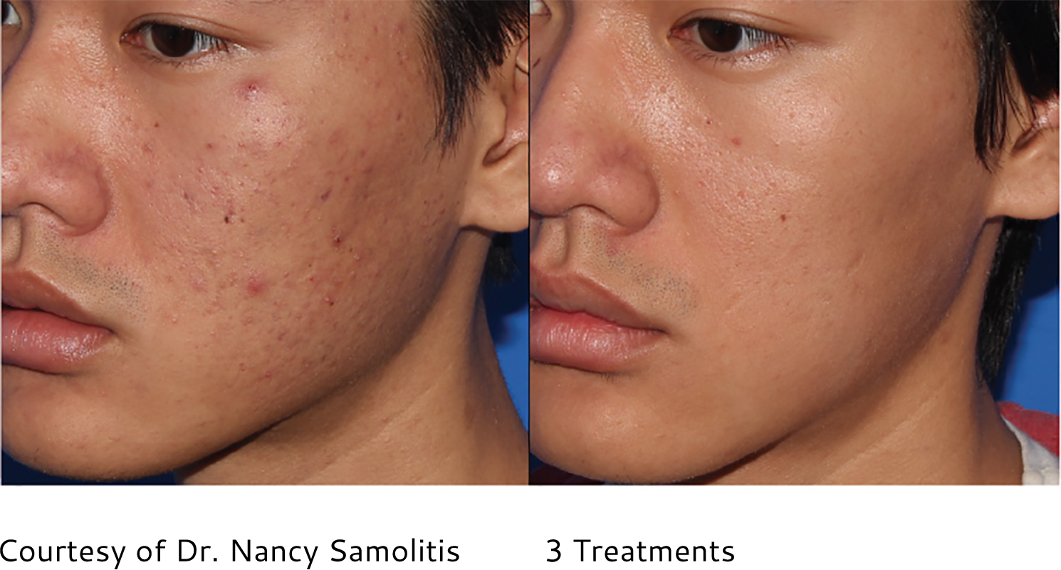PRP Skin Rejuvenation